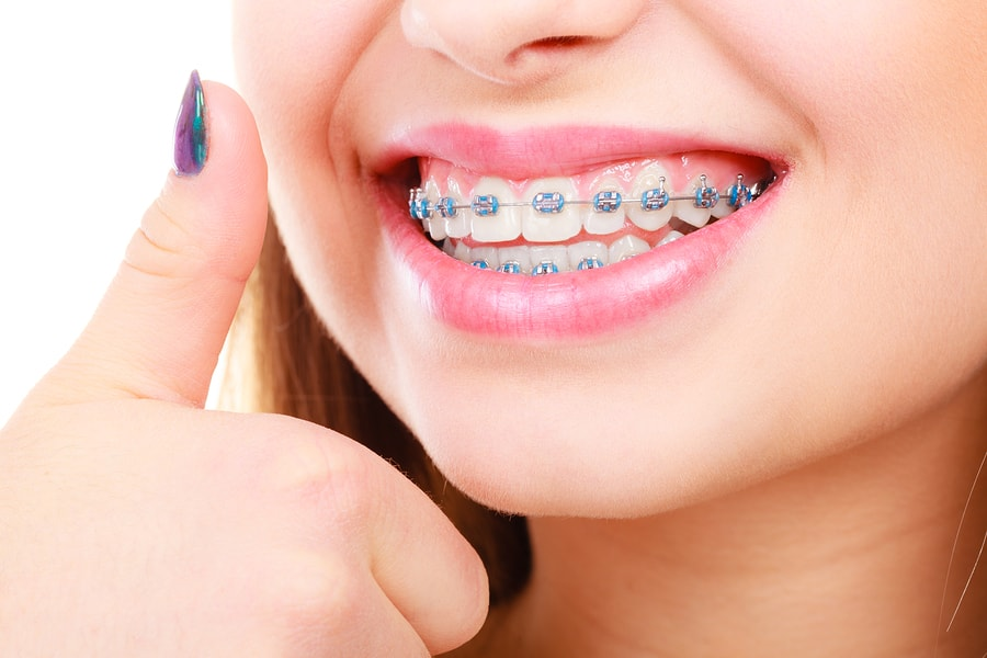 Girl with traditional metal braces